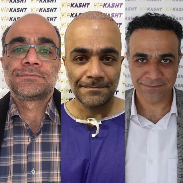 تصاویر کاشت مو در کلینیک کاشت مو vip