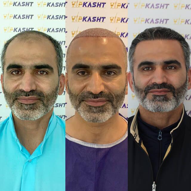 کاشت مو در بهترین کلینیک کاشت مو ایران