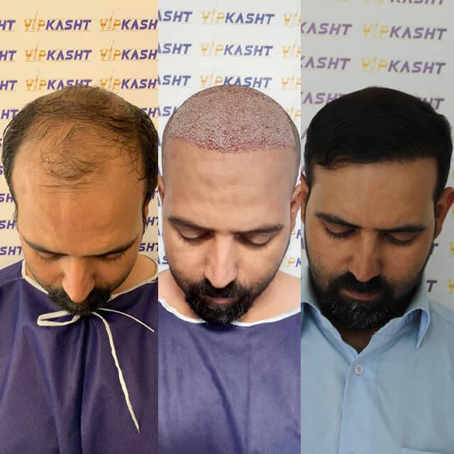 کاشت مو فوق العاده عالی و طبیعی