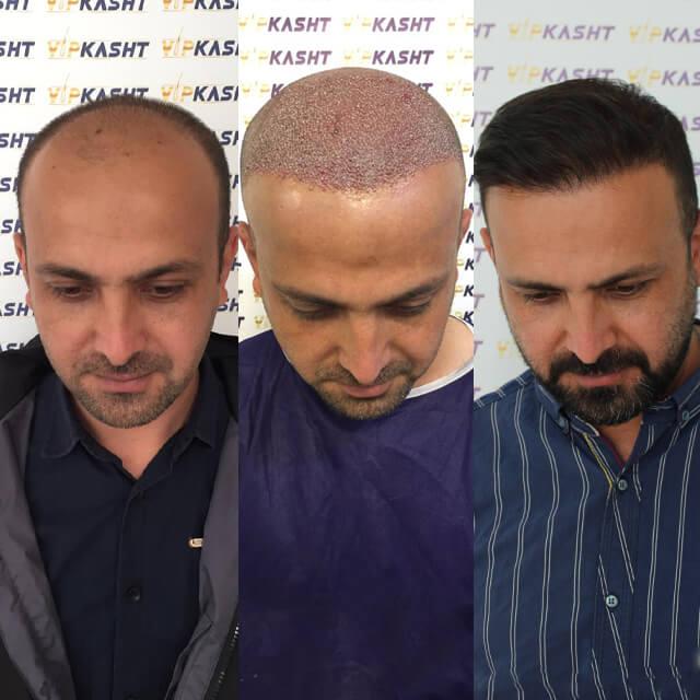 کلینیک کاشت مو در تهران