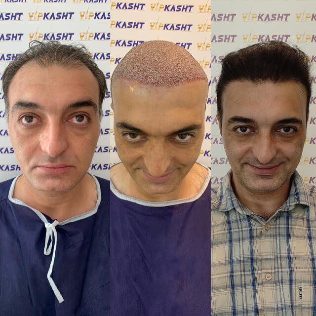 کاشت مو در تهران